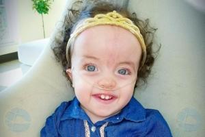 Famia: Operacion di baby Lunah tabata satisfactorio
