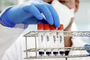 Cantidad di morto a consecuencia di coronavirus na Hulanda a bolbe aumenta