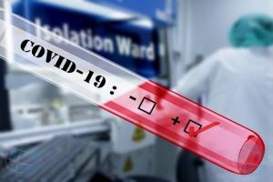 DVG: Apenas 2 persona a test positivo pa COVID19 dialuna